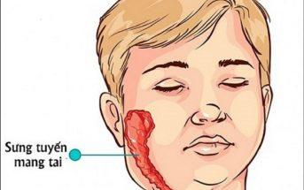 Dấu hiệu củabệnh quai bị ở trẻ em thường là sưng tuyến mang tai