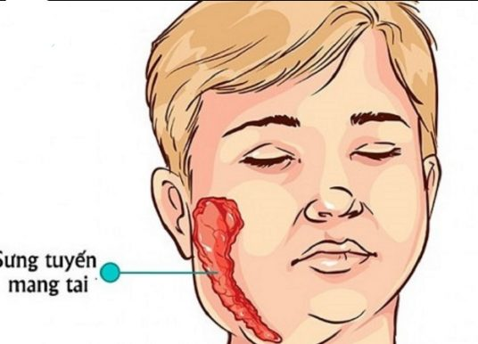 Bệnh quai bị ở trẻ em: Triệu chứng và cách chữa trị