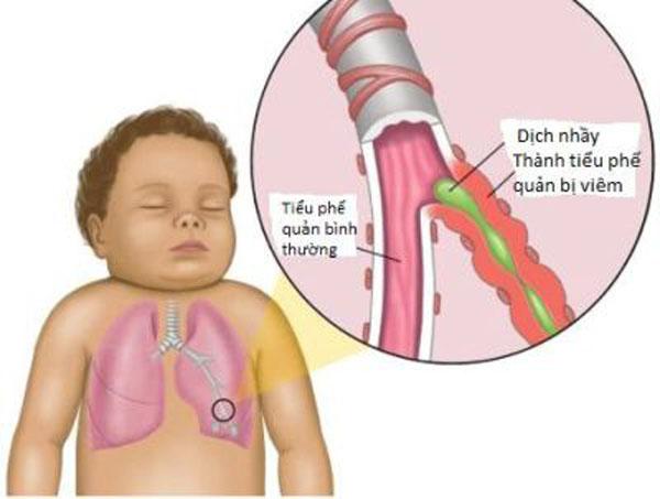 Bệnh viêm phế quản ở trẻ em là bệnh thường gặp ở bất kể thời tiết thế nào