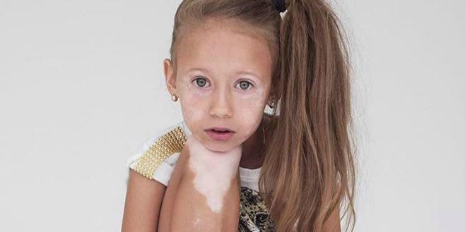 bệnh bạch biến ở trẻ